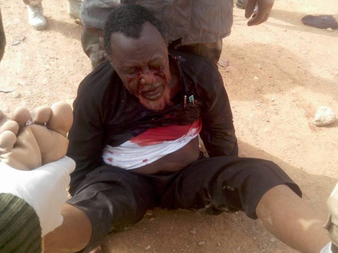 Bloodstained and wounded El-Zakzaky with Nigerian Army