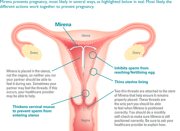 mirena and how it works as a contraceptive IUD_uterus