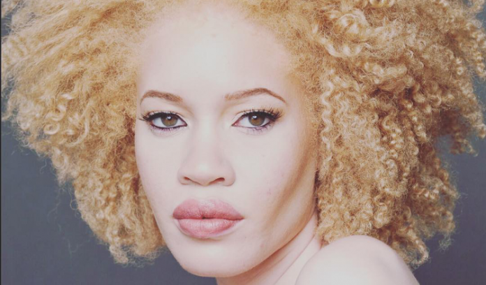 albino-model-with-natural-afro-hairstyles