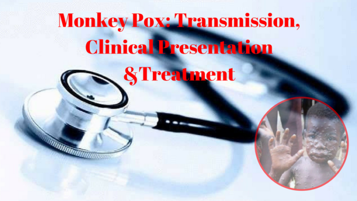 Monkey Pox - Transmission, Clinical Presentation &Treatment